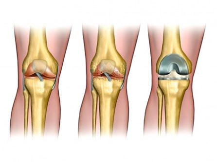 Протезирование коленного сустава в клинике мечникова днепропетровске причина разрушения суставов в организме