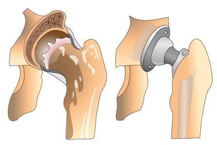 Позы в сексе при протезировании тазобедренного сустава