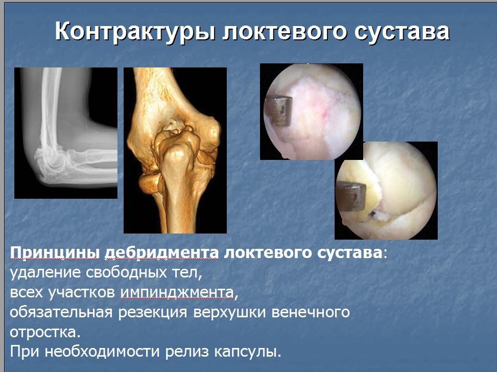 Удаление контрактуры локтевого сустава лечение суставов в бутово