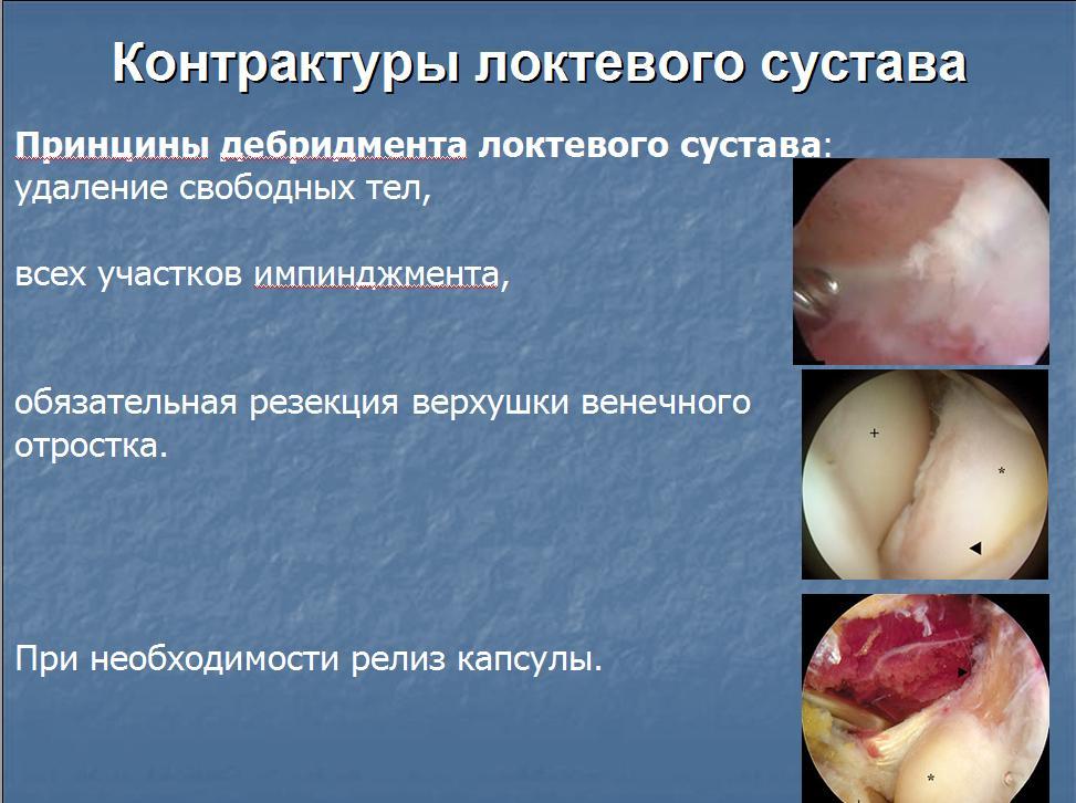 Удаление контрактуры локтевого сустава лечение больных суставов народными средствами