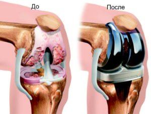 Протезирование коленных суставов украина ортез на сустав бандаж локтевой