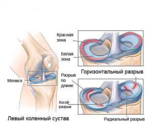 Коленный сустав мениск лазерная операция сосудов суставов сердца мозга нервов этом способствовать ускоренному восстановлению ткане