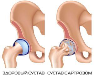Цена операция по замене тазобедренного сустава в харькове